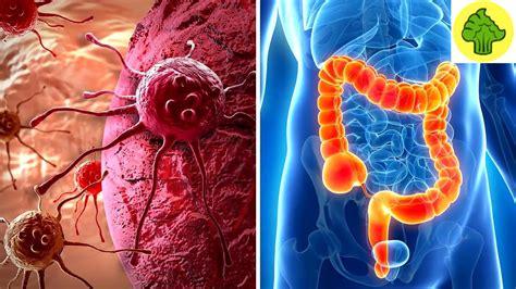 ALERTA! Estos son los 5 síntomas de cancer de colon que ...