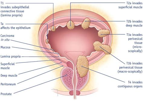 All Type Of Diseases, Cancer Diseases: Bladder Cancer