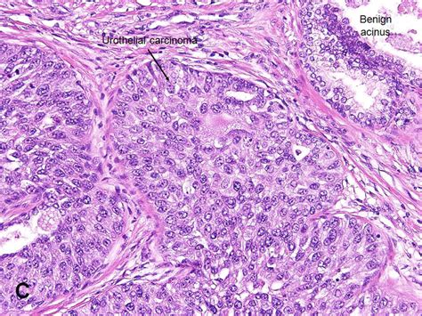 American Urological Association   Urothelial Carcinoma of ...