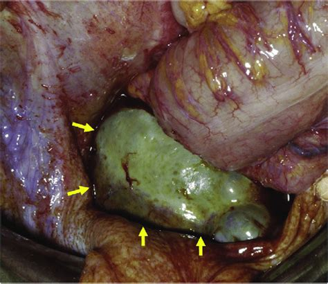 An exophytic recurrent tumor had become impacted in the ...