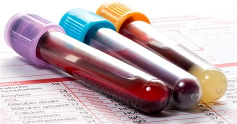 Análisis de sangre podría mejorar la detección precoz del ...