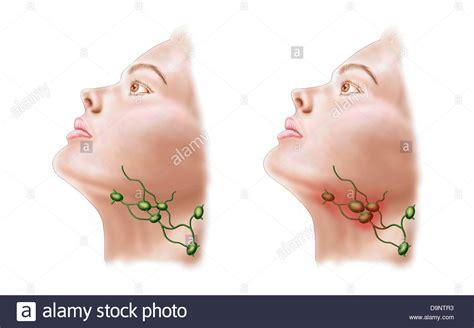 Anatomía de la inflamación de los ganglios linfáticos ...
