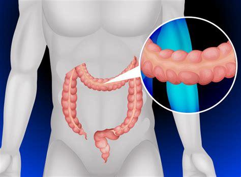 Anatomía del colon y recto   Cirugía general y digestiva ...