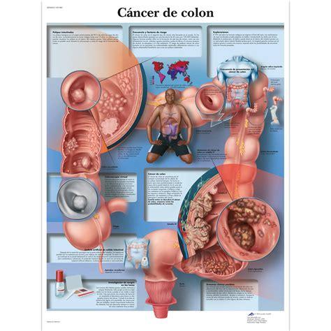 Anatomical Charts and Posters   Anatomy Charts   Pathology ...