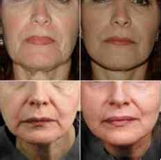 Antes y Después Fotos de la Radiofrecuencia Facial y ...