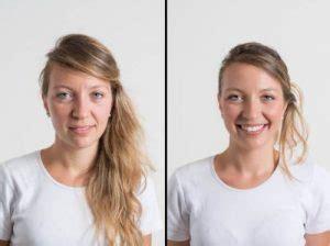 Antes y Después. Fotos y Resultados de la Radiofrecuencia