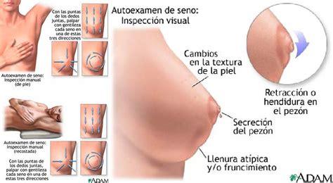 Aprende a reconocer los primeros síntomas del cáncer de mama