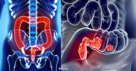 Aquí te mostraremos cuales son los síntomas del cáncer ...