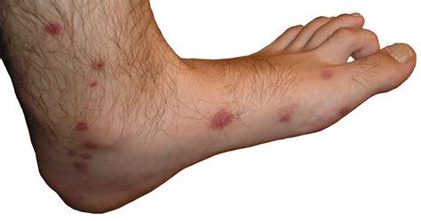 Archivo:Picaduras de mosquito pie.jpg   Wikipedia, la ...
