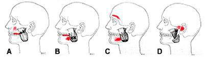 Articulación Temporomandibular, ¿Qué transtornos generan?