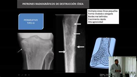 Aspectos Radiológicos de los Tumores Óseos   YouTube