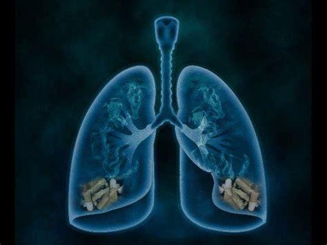 ¡Atención!: Descubre los síntomas del cáncer de pulmón ...