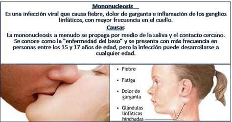 ATENCIÓN INTEGRAL na Twitteru:  Mononucleosis.se inflaman ...