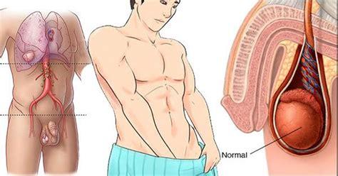 ATENCIÓN: Síntomas del cáncer testicular que NO debes de ...