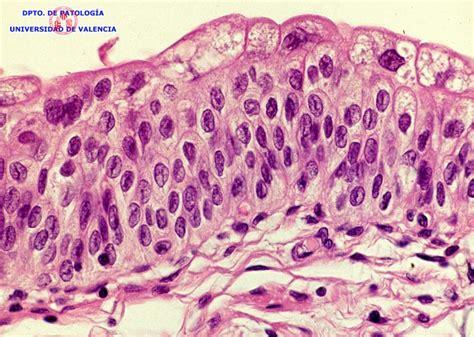 Atlas virtual de histologia e patologia: [CC #13 ...