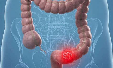 Aumenta un 11,9% en las tasas de mortalidad por cáncer de ...