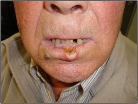 Auto exame bucal: Faça. Câncer de boca pode ser curado se ...