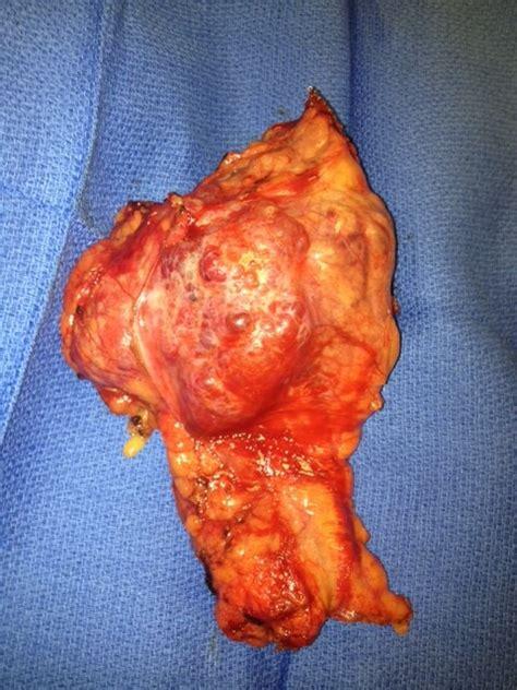 Award Winning Pancreatic Tumors Treatment | Cancer Surgery ...