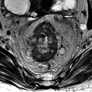 Axial T2 weighted image shows rectal tumor with milimetric ...