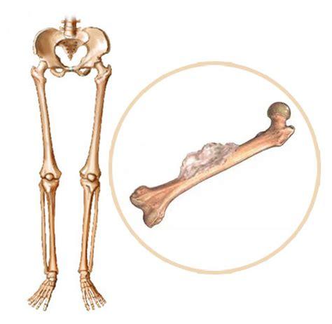 B Health Topics Primary Bone Cancer