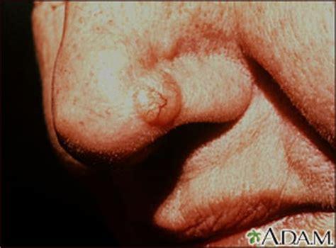 Basal cell skin cancer: MedlinePlus Medical Encyclopedia