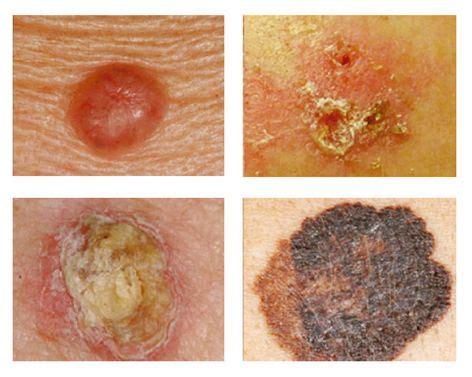 Basocelular, queratosis actinica , epidermoide, melanoma ...
