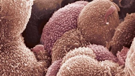 BBC News   New test  helps identify best ovarian cancer ...
