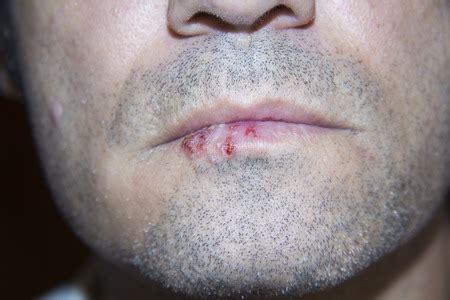 Bei Herpes labialis Melissenöl äußerlich anwenden.