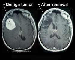 Benign Brain Tumors   What Do You Know About Them?