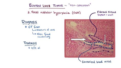 Benign Liver Tumors   Hepatic and Biliary Disorders   MSD ...