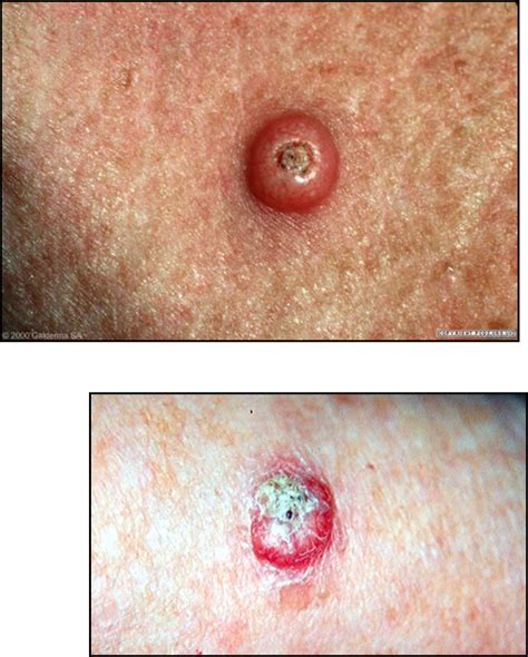 Benign Skin Tumors   Physician Assistant Genmen with ...