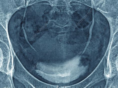 Benign Tumor Of The Bladder   Stock Image   C021/3939 ...