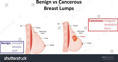 Benign Vs Cancerous Breast Lumps Stock Illustration ...