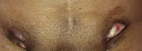 Bilateral inguinal lymphadenopathy presenting as ...