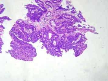 Biopsia de una lesión en el recto  adenocarcinoma . Figura ...
