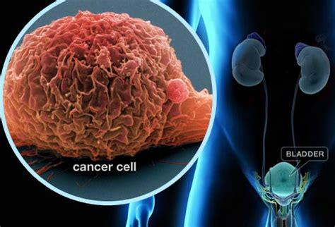 Bladder Cancer Can Be Cured if Found in Time!   Types of ...