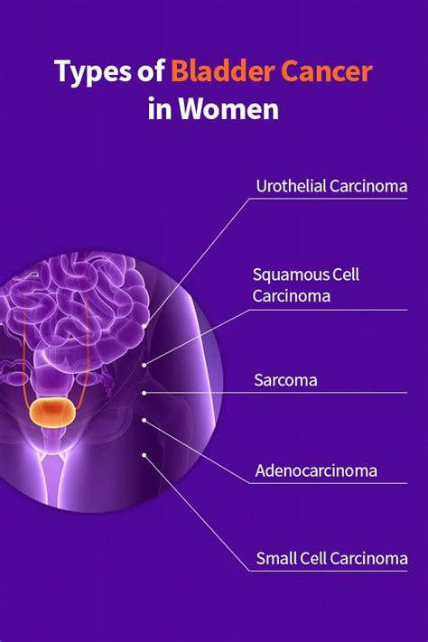 Bladder Cancer In Women   Cxbladder