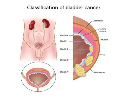 Bladder Cancer   Stepwards