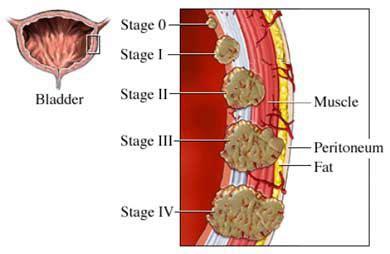 Bladder Cancer   Symptoms, Diagnose, Medications, Treatment