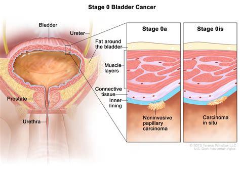 Bladder Cancer Symptoms, Tests, Prognosis, and Stages  PDQ ...