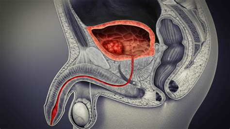 Bladder Cancer: Types, Symptoms, Causes, and Treatment ...
