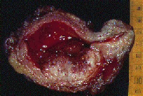 Bladder: Urothelial carcinomas