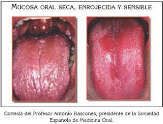 Blog del Dr. Víctor Castañeda: XEROSTOMIA O SINDROME DE ...