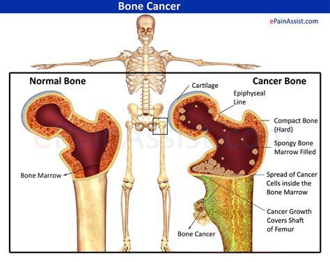Bone Cancer | Cancer | Bone cancer symptoms, Lung cancer ...