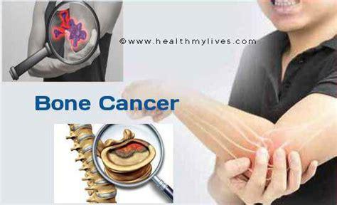 BONE CANCER CAUSES,SYMPTOMS,TREATMENT&PREVENTION
