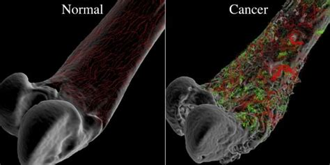 Bone cancer – Types, Symptoms, Causes and other risk factors