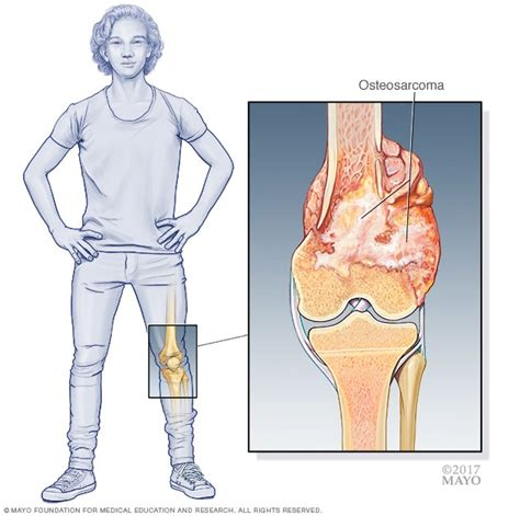 Bone cancer   Symptoms and causes   Mayo Clinic