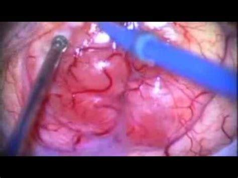 brain tumor Glioma   YouTube