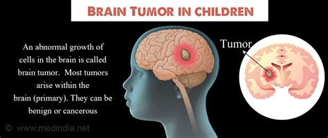 Brain Tumor in Children   Types, Causes, Symptoms ...
