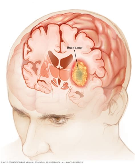 Brain tumor   Symptoms and causes   Mayo Clinic